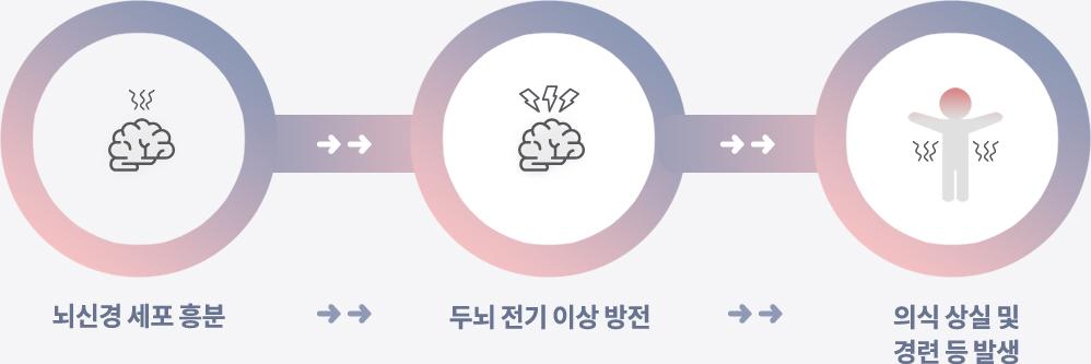 뇌신경 세포 흥분 -> 두뇌 전기 이상 방전 -> 의식 상실 및 경련 증 발생